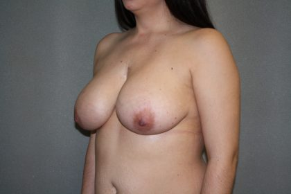 Breast Lift Before & After Patient #1453