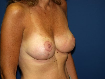 Breast Lift Before & After Patient #1460