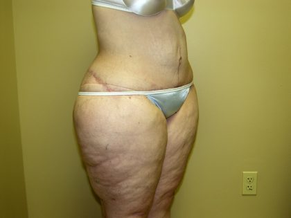 Circumferential Tummy Tuck Before & After Patient #905