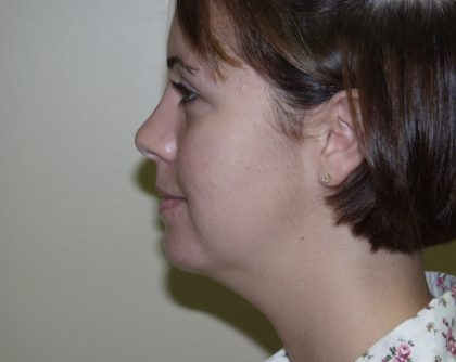 Chin Augmentation Before & After Patient #468