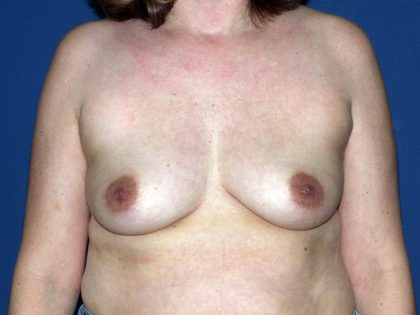 Breast Lift Before & After Patient #1703