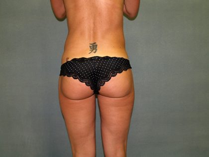 Liposuction Before & After Patient #3812
