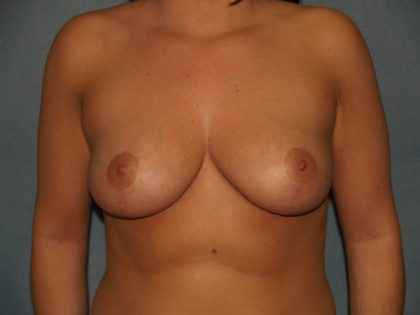 Breast Reduction Before & After Patient #3082