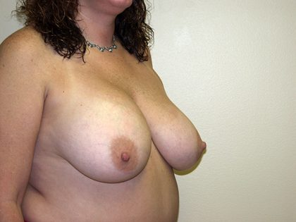 Breast Reduction Before & After Patient #3450