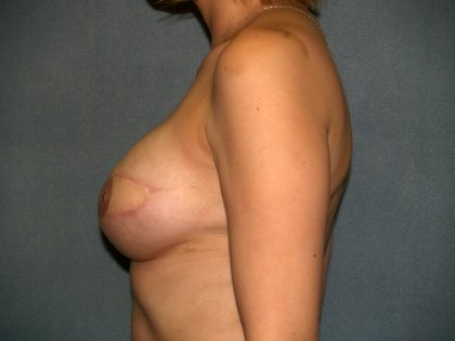 Breast Reconstruction Before & After Patient #2103