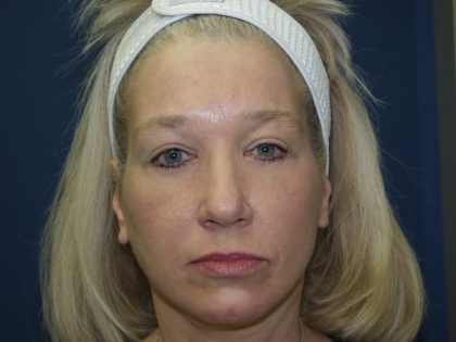Facelift Before & After Patient #512