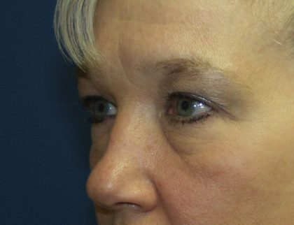 Eye Surgery Before & After Patient #691