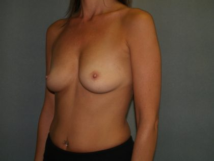Breast Augmentation Before & After Patient #2766