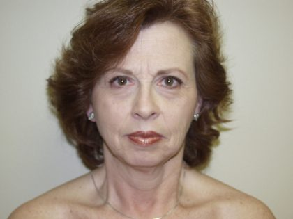 Facelift Before & After Patient #475