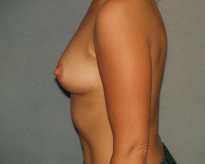 Breast Augmentation Before & After Patient #2836