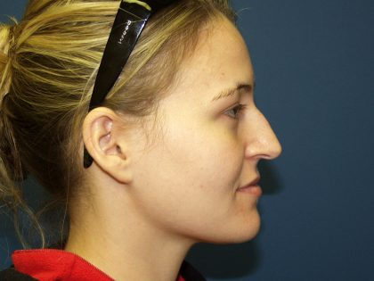 Nose Surgery Before & After Patient #738