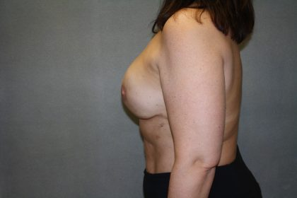 Breast Reconstruction Before & After Patient #1906