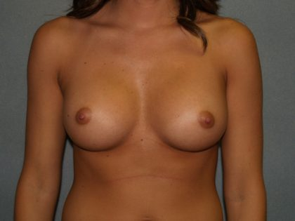 Breast Augmentation Before & After Patient #2675