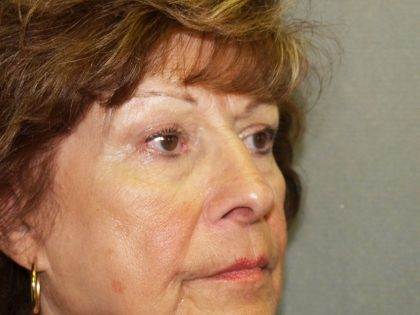 Nose Surgery Before & After Patient #804