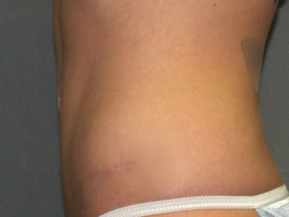 Tummy Tuck Before & After Patient #2426