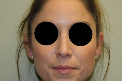 Nose Surgery Before & After Patient #745