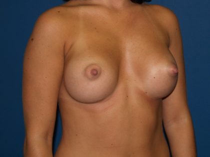 Breast Augmentation Before & After Patient #2538