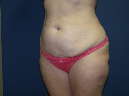 Tummy Tuck Before & After Patient #2410