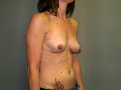 Breast Reconstruction Before & After Patient #2004