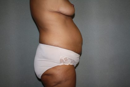 Tummy Tuck Before & After Patient #2353