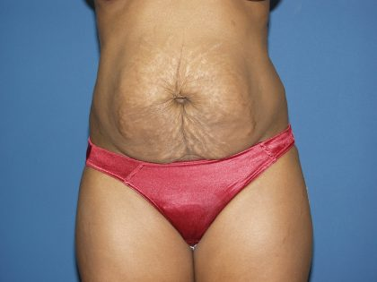 Tummy Tuck Before & After Patient #2060