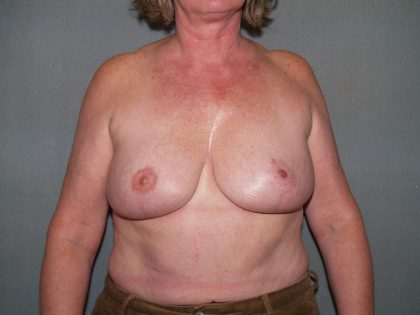 Breast Reconstruction Before & After Patient #1739