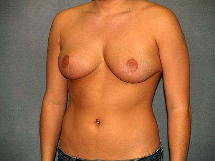 Breast Reduction Before & After Patient #3101