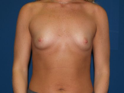 Breast Augmentation Before & After Patient #3081