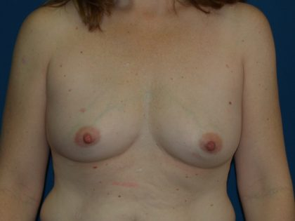 Breast Augmentation Before & After Patient #3124