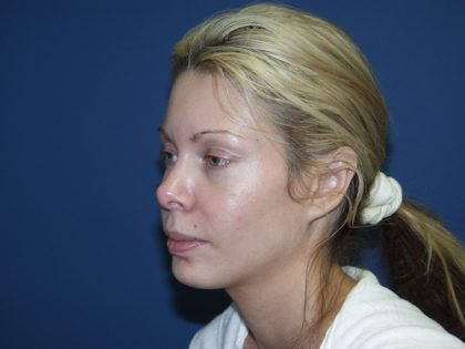 Brow Lift Before & After Patient #497