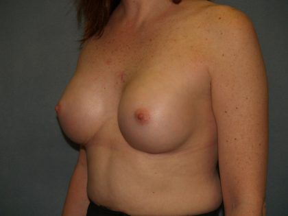 Breast Augmentation Before & After Patient #2626
