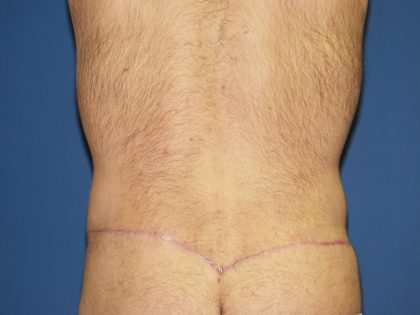 Circumferential Tummy Tuck Before & After Patient #875