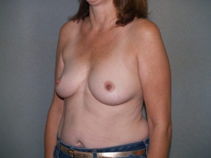 Breast Reconstruction Before & After Patient #1725