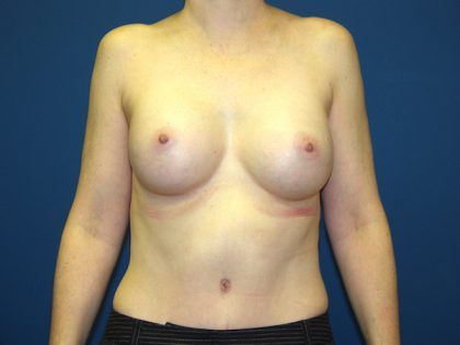 Breast Augmentation Before & After Patient #2885