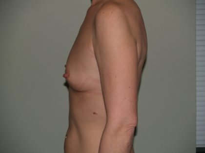 Breast Augmentation Before & After Patient #3053
