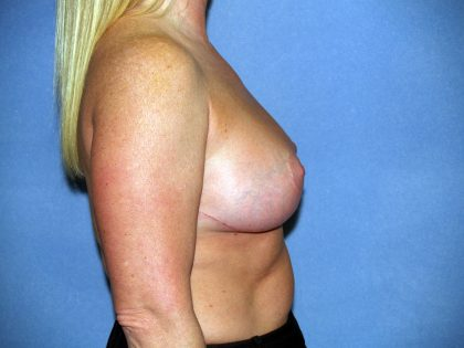Breast Lift Before & After Patient #1573