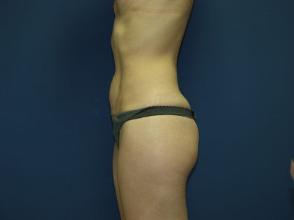 Tummy Tuck Before & After Patient #2361