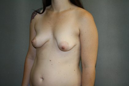 Breast Lift Before & After Patient #1481