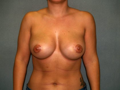 Breast Reconstruction Before & After Patient #2212