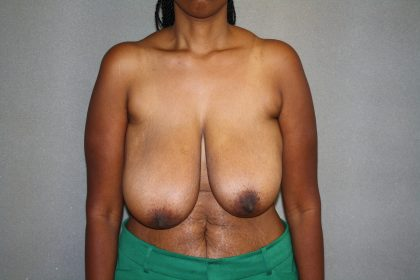 Breast Reduction Before & After Patient #3329
