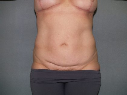 Tummy Tuck Before & After Patient #2368