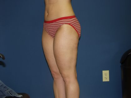 Liposuction Before & After Patient #3854
