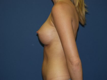 Breast Augmentation Before & After Patient #2696