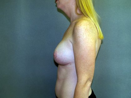 Breast Lift Before & After Patient #1537