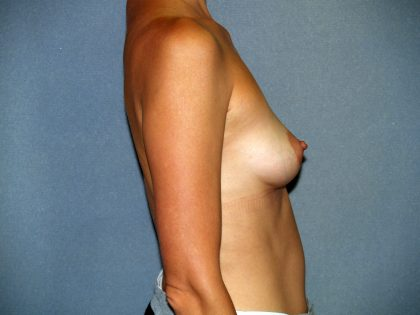 Breast Lift Before & After Patient #1696