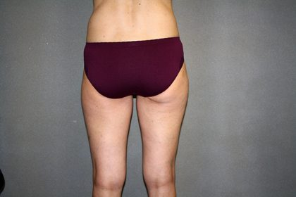 Liposuction Before & After Patient #3674