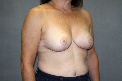 Breast Reduction Before & After Patient #3483