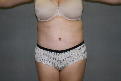 Tummy Tuck Before & After Patient #2161