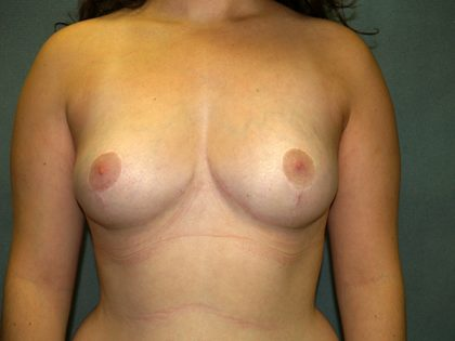 Breast Reduction Before & After Patient #3369