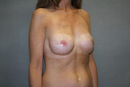 Breast Reconstruction Before & After Patient #2375